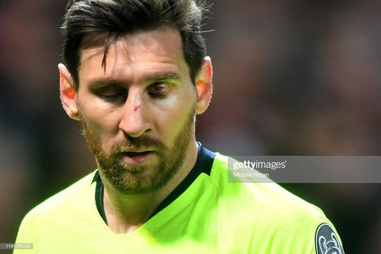 An injured Lionel Messi